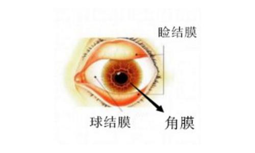 深圳眼科医院:角膜炎与结膜炎不一样,这两种眼表炎症别再弄错了!